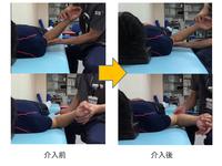 肩甲上腕関節可動域改善のためのワンポイント 千葉慎一先生