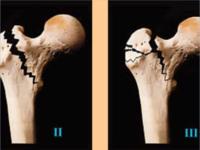 大腿骨頚部骨折と早期死亡のリスクの関係