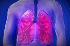 身体活動性の改善がCOPDの予防・治療に有効