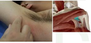 挙がらない肩の治療に必要な構造が見えてますか? -解剖学的な理解と触診技術との統合-