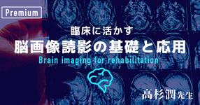 臨床に活かす脳画像読影の基礎と応用-その1-【高杉 潤先生|千葉県立保健医療大学】#2