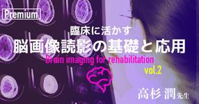 臨床に活かす脳画像読影の基礎と応用 -その2- 【千葉県立保健医療大学|高杉潤先生】