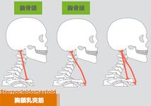 【イラスト】胸鎖乳突筋の解剖学ーストレッチと筋トレー