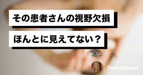 【脳卒中シリーズ】その患者さんの視野欠損ほんとに見えてない?